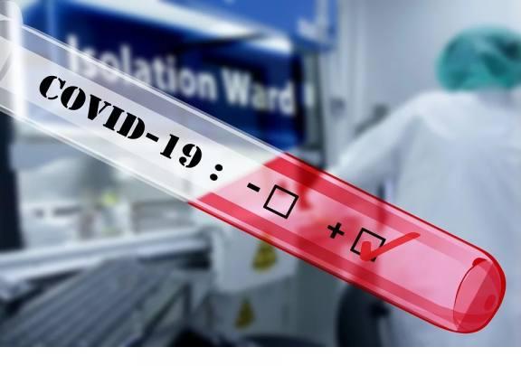 В Красноярском крае степень тяжести коронавируса варьируется от легкой до средней